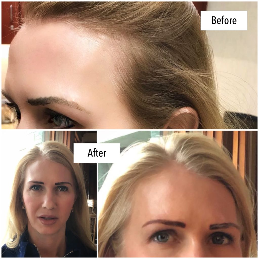 PRP Treatment for Hair Loss - Before and After